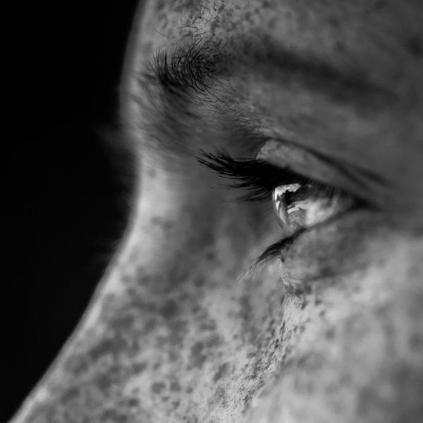 Hiperpigmentação cutânea: porque acontece e como tratar?