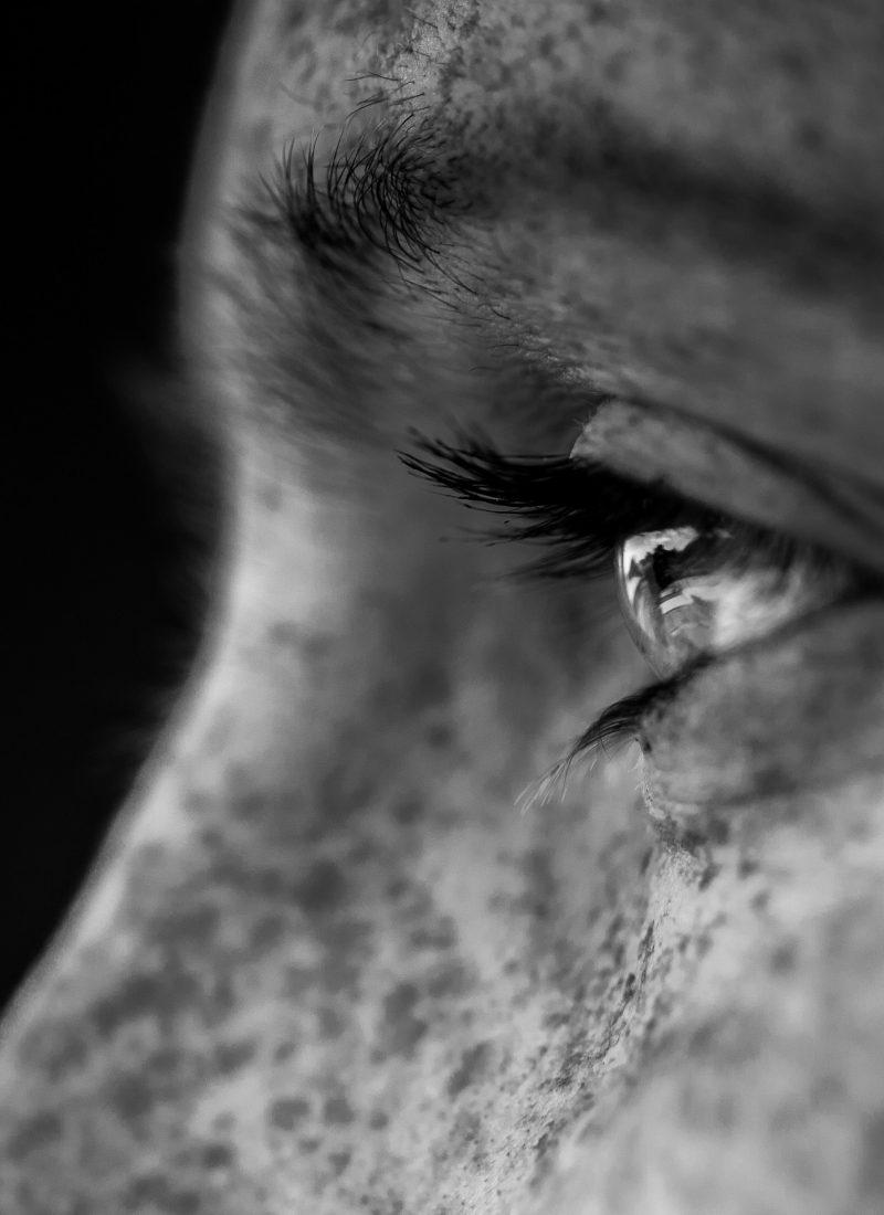 Hiperpigmentação cutânea: porque acontece e como tratar